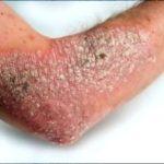 Pelle secca: cause, fattori di rischio, consigli e terapie