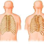 Scoliosi: segni, cause, fattori di rischio e rimedi