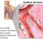 Bronchiolite : sintomi, cause, complicazioni e cure