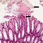 Diarrea associata agli antibiotici : cause, complicazioni e cure