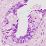 Ectasia del dotto mammario : sintomi, cause, complicazioni e cure