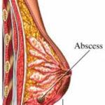 Mastite : sintomi, segni, cause, cure e consigli