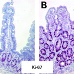 Infezione da norovirus : sintomi, cause, rischi e cure