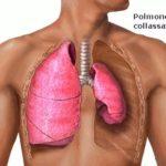 Pneumotorace : segni, sintomi, cause e cure