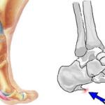 Speroni ossei :  cause, complicazioni, diagnosi e chirurgia