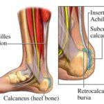 Rottura del tendine di Achille : sintomi, cause, cure e prevenzione