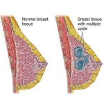 Cisti al seno : sintomi, cause, diagnosi e cure