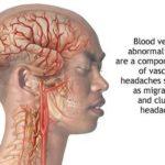Mal di testa da sforzo : sintomi, cause, diagnosi, cure e prevenzione