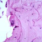 Morbo di paget dell'osso : sintomi, cause, diagnosi e cure