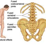 Sacroileite : sintomi, cause, diagnosi e cure