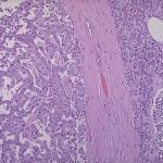 Sindrome di Zollinger-Ellison : sintomi, cause, diagnosi cure e chirurgia