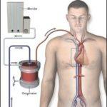 Sindrome da distress respiratorio acuto (ARDS) : sintomi, cause, complicazioni e cure