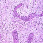 Displasia fibrosa : sintomi, segni, cause, diagnosi e cure