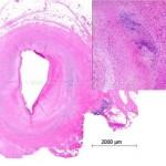 Arterite di Takayasu : sintomi, cause, diagnosi e cure