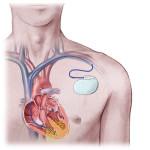 Defibrillatore cardioverter impiantabile (ICD) : utilizzo, rischi e precauzioni