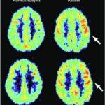 Depersonalizzazione : sintomi, cause, diagnosi e cure