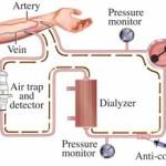 Emodialisi : procedure, complicazioni e benefici