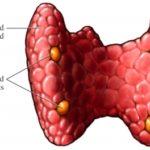 Sindrome di DiGeorge : sintomi, cause, genetica e terapie