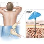 Biopsia del midollo osseo e agoaspirato : procedure, rischi, utilizzo e patologie