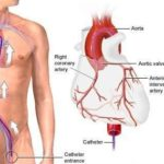 Coronarografia : procedura, rischi e vantaggi
