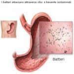 Diarrea del viaggiatore : sintomi, cause, prevenzione e rimedi
