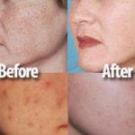 Peeling chimico : procedure, vantaggi e risultati