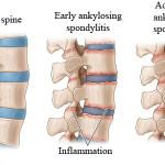 Spondilite anchilosante : sintomi, cause, diagnosi e terapie