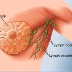 Cancro al seno maschile : sintomi, segni, cause, diagnosi e cure