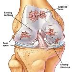 Artrite settica : sintomi, cause, diagnosi e cure