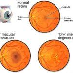 Degenerazione maculare secca : sintomi, cause, diagnosi cure e prevenzione