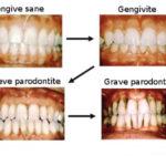Gengivite : sintomi, cause, cure e prevenzione