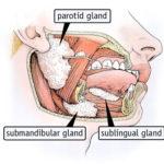 Secchezza delle fauci : cause, diagnosi e cure