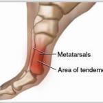 Metatarsalgia : sintomi, complicazioni, cause e rimedi