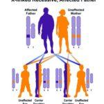 Sindrome di Hunter : sintomi, fattori di rischio, cause e terapie