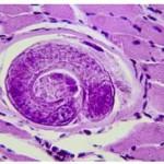Trichinosi : sintomi, cause, diagnosi e cure