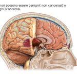Tumore al cervello : sintomi, cause, complicazioni, diagnosi e cure