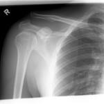 Lussazione della spalla : sintomi, cause, diagnosi e cure