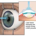 Chirurgia refrattiva LASIK : procedura, rischi e prognosi
