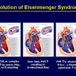 Sindrome di Eisenmenger : sintomi, cause, diagnosi e trattamenti