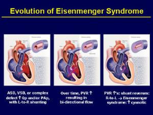 evoluzione della Eisenmenger
