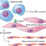 Mieloma multiplo : sintomi, cause, diagnosi e cure