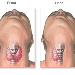 Tiroidectomia : chirurgia, procedure e aspettative