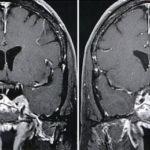Tumori ipofisari : sintomi, diagnosi, cause e cure