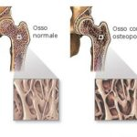 Densitometria ossea : procedure, risultati e osteoporosi