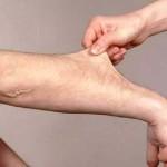 Sindrome di Ehlers-Danlos : sintomi, segni,complicazioni e diagnosi
