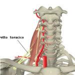 Sindrome dello stretto toracico : sintomi, cause, cure e chirurgia