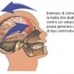 Commozione cerebrale : sintomi, complicazioni, diagnosi e cure