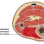Sindrome compartimentale da sforzo cronico : cause, diagnosi e cure