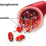 Sindrome iperosmolare diabetica : sintomi, cause, cure e prevenzione