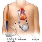 Dispositivi di assistenza ventricolare (VAD)